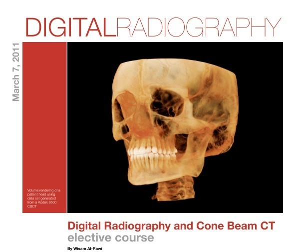 latest cone beam ct and dental Abstract this article presents a review of the clinical applications of cone-beam computed tomography (cbct) in different dental disciplines a literature search was.