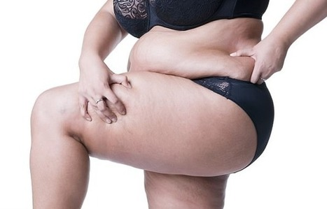 How To Get Rid Of Inner Thigh Fat In Best Diet For Women Scoop It
