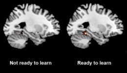 Ready to learn? Brain scans can tell you | Cognitive Science | Scoop.it