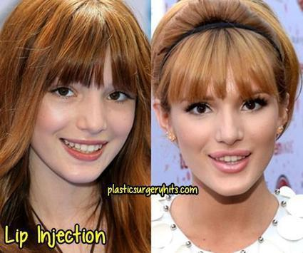 bella thorne nose job in plastic surgery and celebrity