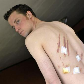 Foot à Sprimont: Mathieu, agressé alors qu'il dépanne en tant qu'arbitre dans un tournoi... amical | Esneux | Scoop.it