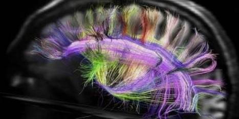 Une grille en 3D du réseau de fibres dans le cerveau | NEUROSCIENCE | Scoop.it