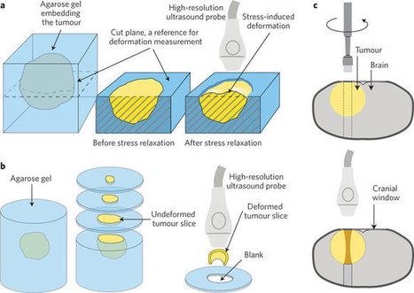 Tumour mechanopathology: Cutting the stress out | Melanoma BRAF Inhibitors Review | Scoop.it