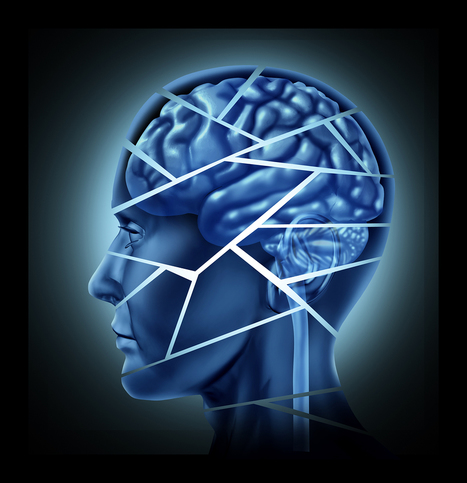 Canadian start-up building online and tablet tools for assessing brain disorders | Health around the clock | Scoop.it