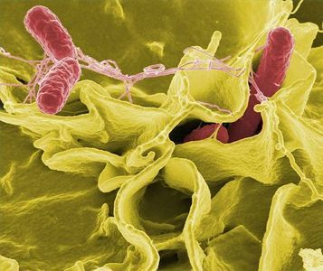 Bacteria-immune system 'fight' can lead to chronic diseases, study suggests | Trending Microbes | Scoop.it