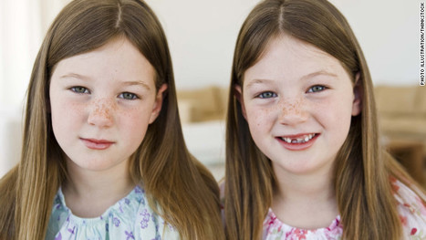 Twins show genes may play a role in body image   NYL - News YOU Like   Scoop.it