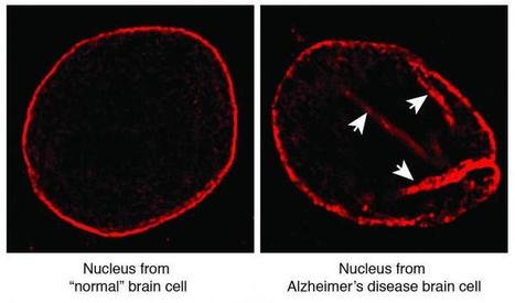 Brain cell death in Alzheimer's linked to structural flaw | Scientific Discovery | Scoop.it