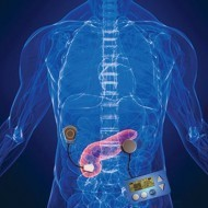 Artificial pancreas a step closer for patients with type 1 diabetes | Science and life | Scoop.it
