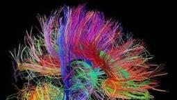 A big brainstorm is on the horizon in neuroscience   Early Brain Development   Scoop.it