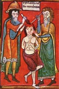 History of Medicine: Epilepticus sic curabitur | health & medicine in philosophy & culture | Scoop.it