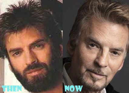 Kenny Loggins Plastic Surgery Before After Pictures | Celebrity Plastic Surgery | Scoop.it