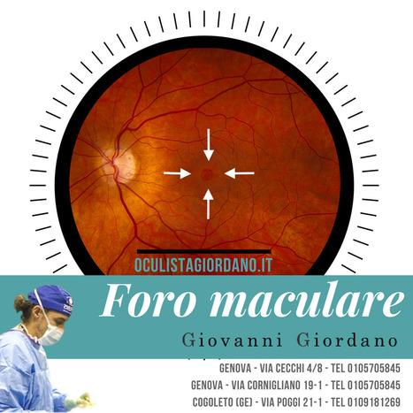 Foro Maculare Diagnosi e Cura. Malattie della Retina   Giovanni Giordano 4a3718675a