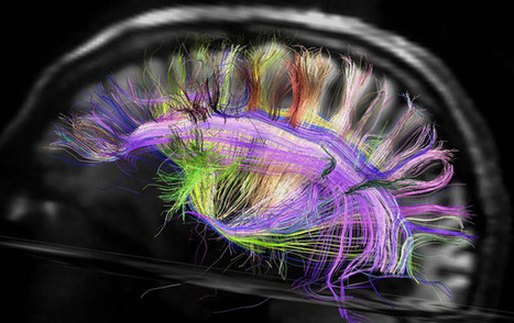 The Woven Brain | Weird Science | Scoop.it