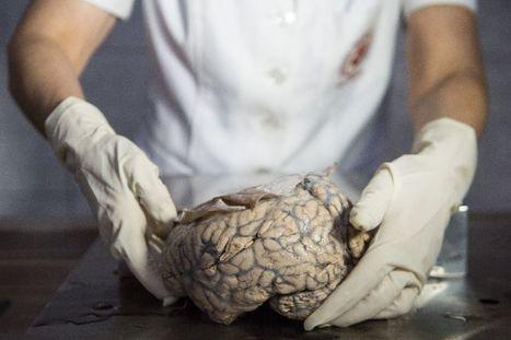 Au Pérou, un musée pour scruter les cerveaux malades | EntomoScience | Scoop.it