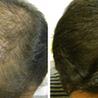 Cosmetic Dermatology Laser Skin Treatment