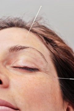Acupuncture Basics | Medical Rescue: Healthcare Needed | Scoop.it