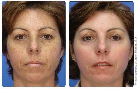 pigmentflekker behandling