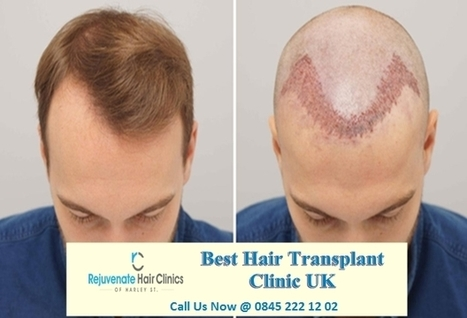 Hair Transplants Before And After