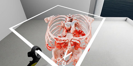 Virtual Reality in Medicine: New Opportunities for Diagnostics and Surgical Planning | University of Basel | GAMIFICATION & SERIOUS GAMES IN HEALTH by PHARMAGEEK | Scoop.it