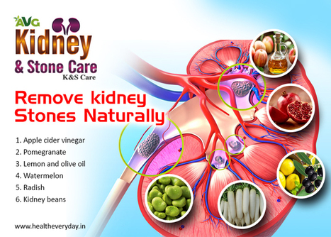 How To Remove Kidney Stones Naturally In Health Everyday Scoop It