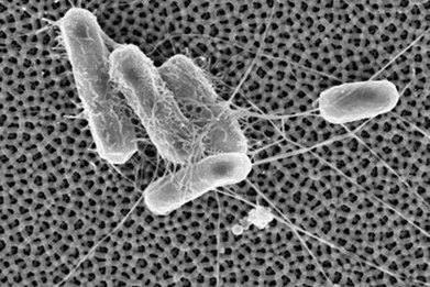 A nanotech application that keeps bacteria from sticking to surfaces | Pharma | Scoop.it