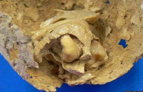 Bizarre Tumor Found In 1,600-Year-Old Corpse   Science is Cool!   Scoop.it
