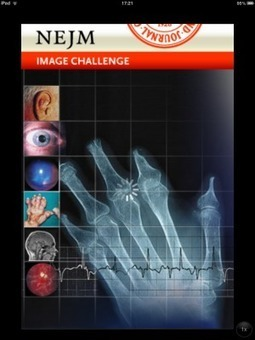 Test your diagnostic skills with the NEJM Image Challenge app | Digitized Health | Scoop.it