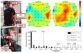 Commander ses jambes artificielles avec son cerveau | Agoria's technology review | Scoop.it