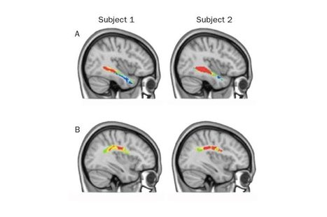 Some People's Brains Are Wired for Languages | Multilíngues | Scoop.it