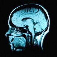 American Friends of Tel Aviv University: Are Schizophrenia and Autism Close Relations? | Mom Ed | Scoop.it