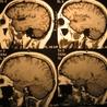 Brain Momentum