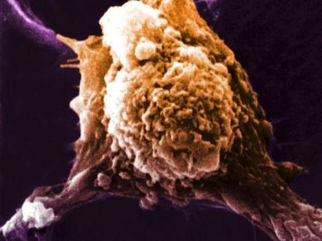 Scientists believe they have found a way to make a universal cancer vaccine   Perspectives on Health & Nursing   Scoop.it