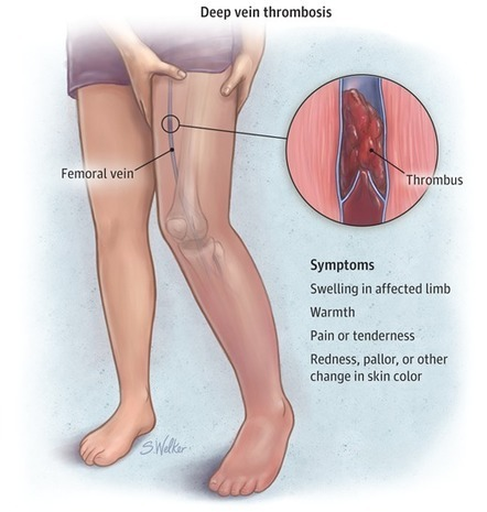 Deep Vein Thrombosis | Heart and Vascular Health | Scoop.it
