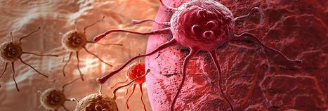 Dieser neue Wirkstoff stoppt die Ausbreitung von Hautkrebs | #Research #Cancer | 21st Century Innovative Technologies and Developments as also discoveries, curiosity ( insolite)... | Scoop.it
