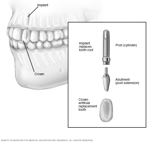 Dental Implants, Page 2