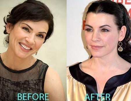 Julianna Margulies Plastic Surgery Before And A