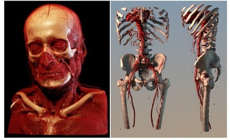 The Future of Medical Visualisation - Technology Review   Complex Insight  - Understanding our world   Scoop.it