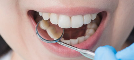 Teeth Whitening Cost In Pune Sweet Smile Dent