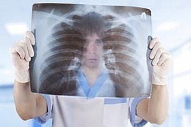Screening smokers could double rate of survival (Aus) | Aaron's Yr 9 Journal | Scoop.it