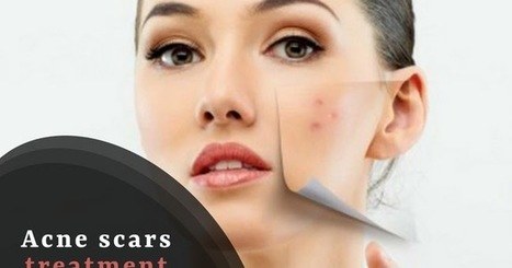 3 Home Remedies For Your Acne Scar Removal Cl