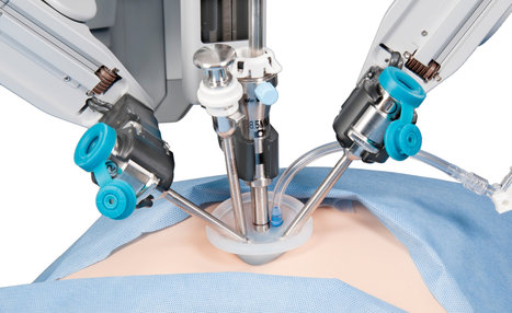 Single-Incision Surgery, Via New Robotic Systems | leapmind | Scoop.it