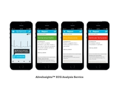 AliveCor Transforms Heart Monitor into eHealth Service | Business Wire | Expertpatient | Scoop.it