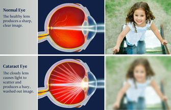 Protect your vision, know the 3 leading causes of blindness | Drs. McIntyre, Garza, Avila, & Jurica | Scoop.it