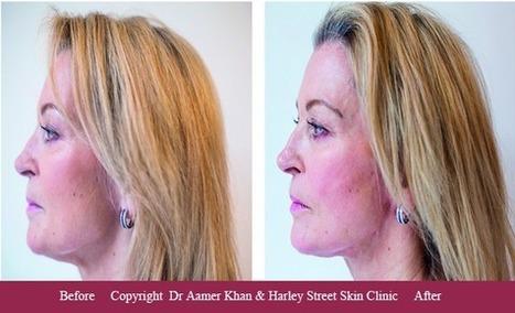 Silhouette Lift' in Harley Street Skin Clinic | Scoop it