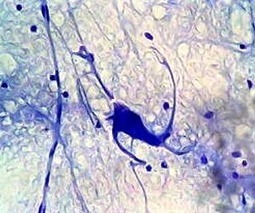 Watching neurons learn | Psychology and Brain News | Scoop.it