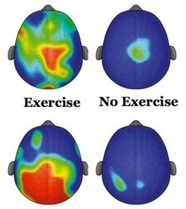 Exercise Is ADHD Medication | Neuroscience - Memory - Learning - Mindfulness - Motivation | Scoop.it