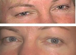 Facial Exercises Free 106