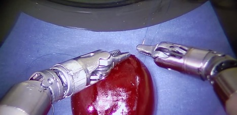 Would you let a robot that can stitch a grape stitch you? | Doctor | Scoop.it