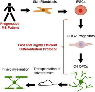 Oligodendrocytes derived from multiple sclerosis patients produce myelin in animals | Stem Cells & Tissue Engineering | Scoop.it