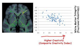 The Most Creative Brains are Slow | Lemlem | Scoop.it